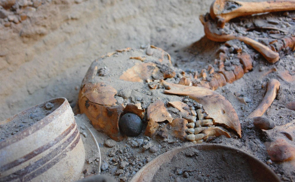 The World's Oldest known Artificial Eye